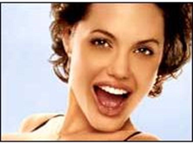 Karadeniz kadınına Jolie dudağı!